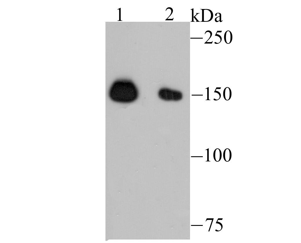 Western blot analysis of NUP153 on K562 (1) and HepG2 (2) cell lysate using anti-NUP153 antibody at 1/500 dilution.