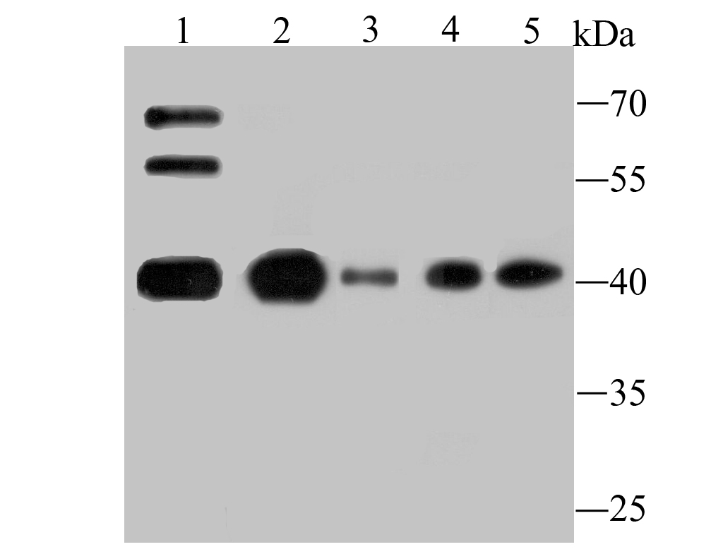 Western blot analysis of Apg3 on different lysates. Proteins were transferred to a PVDF membrane and blocked with 5% BSA in PBS for 1 hour at room temperature. The primary antibody (ET1706-29, 1/500) was used in 5% BSA at room temperature for 2 hours. Goat Anti-Rabbit IgG - HRP Secondary Antibody (HA1001) at 1:5,000 dilution was used for 1 hour at room temperature.<br />   Positive control:<br />   Lane 1: Mouse testis tissue<br />   Lane 2: K562 cell lysate<br />   Lane 3: HL-60 cell lysate<br />   Lane 4: Hela cell lysate<br />   Lane 5: Jurkat cell lysate