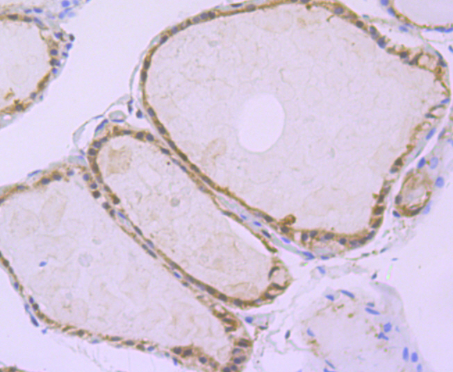 Immunohistochemical analysis of paraffin-embedded human thyroid gland tissue using anti-Apg3 antibody. The section was pre-treated using heat mediated antigen retrieval with sodium citrate buffer (pH 6.0) for 20 minutes. The tissues were blocked in 5% BSA for 30 minutes at room temperature, washed with ddH2O and PBS, and then probed with the primary antibody (ET1706-29, 1/100) for 30 minutes at room temperature. The detection was performed using an HRP conjugated compact polymer system. DAB was used as the chromogen. Tissues were counterstained with hematoxylin and mounted with DPX.