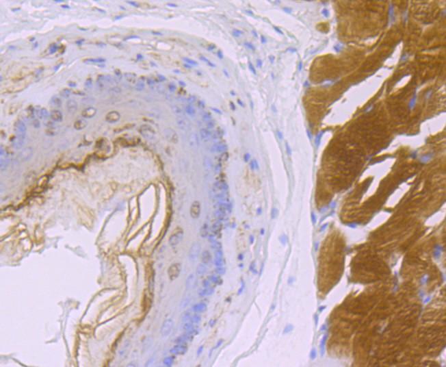Immunohistochemical analysis of paraffin-embedded human liver tissue using anti-SDHB antibody. Counter stained with hematoxylin.