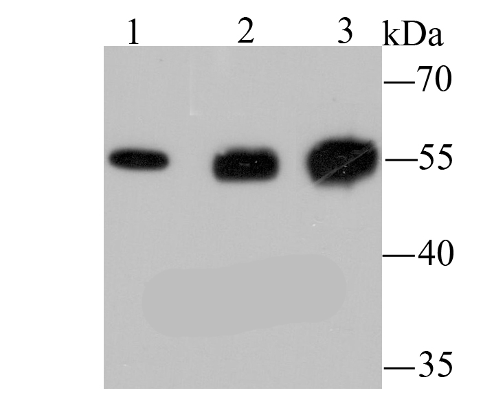 Western blot analysis of LOX on different lysates using anti-LOX antibody at 1/1,000 dilution.<br />  Positive control:<br />  Lane 1: Jurkat <br />  Lane 2: Mouse brain<br />  Lane 3: Human fetal brain<br />