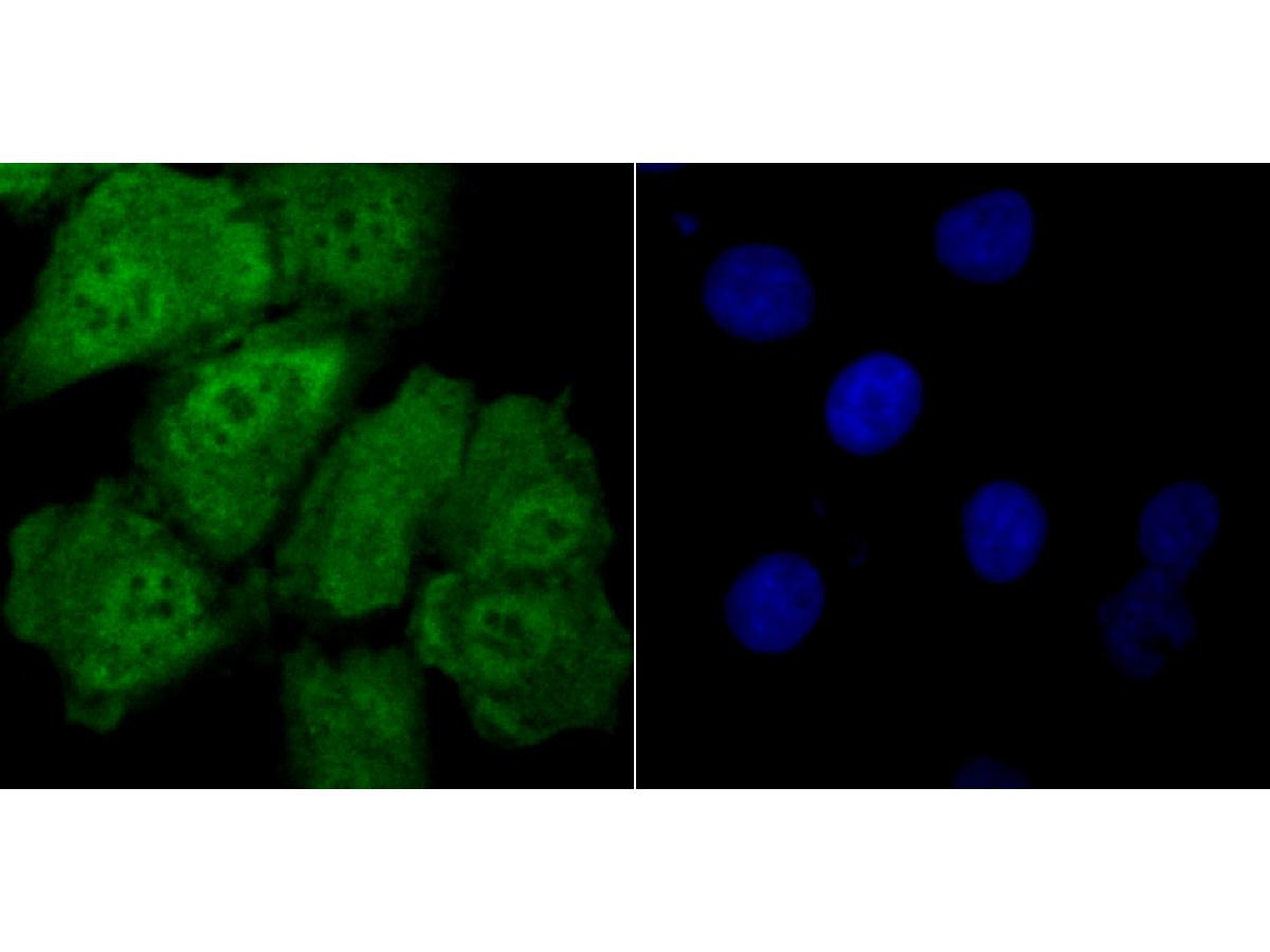 ICC staining Drosha in A549 cells (green). The nuclear counter stain is DAPI (blue). Cells were fixed in paraformaldehyde, permeabilised with 0.25% Triton X100/PBS.