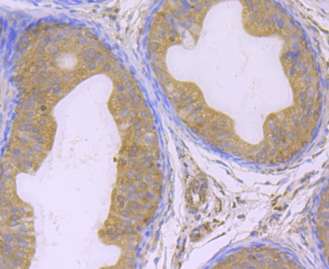 Immunohistochemical analysis of paraffin-embedded rat epididymis tissue using anti-GPX4 antibody. The section was pre-treated using heat mediated antigen retrieval with Tris-EDTA buffer (pH 8.0-8.4) for 20 minutes.The tissues were blocked in 5% BSA for 30 minutes at room temperature, washed with ddH2O and PBS, and then probed with the primary antibody (ET1706-45, 1/200) for 30 minutes at room temperature. The detection was performed using an HRP conjugated compact polymer system. DAB was used as the chromogen. Tissues were counterstained with hematoxylin and mounted with DPX.