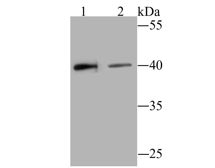 Western blot analysis of BST2 on Hela (1) and SiHa (2) cell lysate using anti-BST2 antibody at 1/500 dilution.