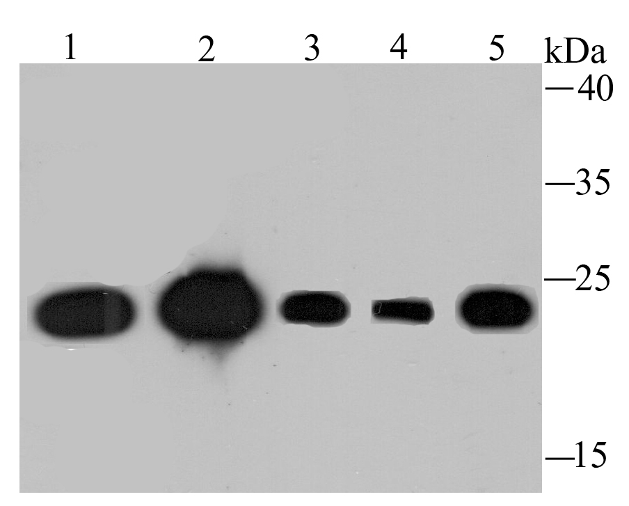 Western blot analysis of TCTP on different lysates using anti-TCTP antibody at 1/1,000 dilution.<br />  Positive control:<br />  Lane 1: Mouse placenta tissue<br />  Lane 2: Mouse testis tissue<br />  Lane 3: Hela<br />  Lane 4: A431<br />  Lane 5: MCF-7<br />