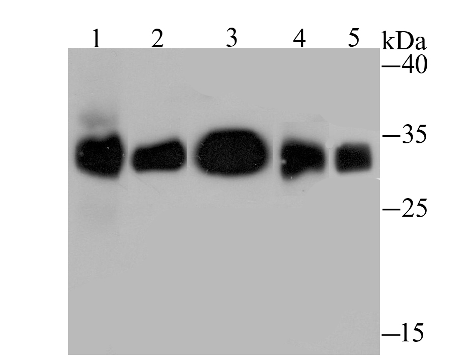 Western blot analysis of HLA-DQA1 on different lysates using anti-HLA-DQA1 antibody at 1/1,000 dilution.<br />   Positive control:<br />   Lane 1: Rat lung <br />   Lane 2: Rat skin <br />   Lane 3: Mouse thymus <br />   Lane 4: Mouse spleen<br />   Lane 5: Raji