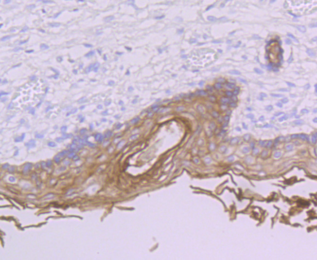 Immunohistochemical analysis of paraffin-embedded human skin tissue using anti-PERP antibody. Counter stained with hematoxylin.