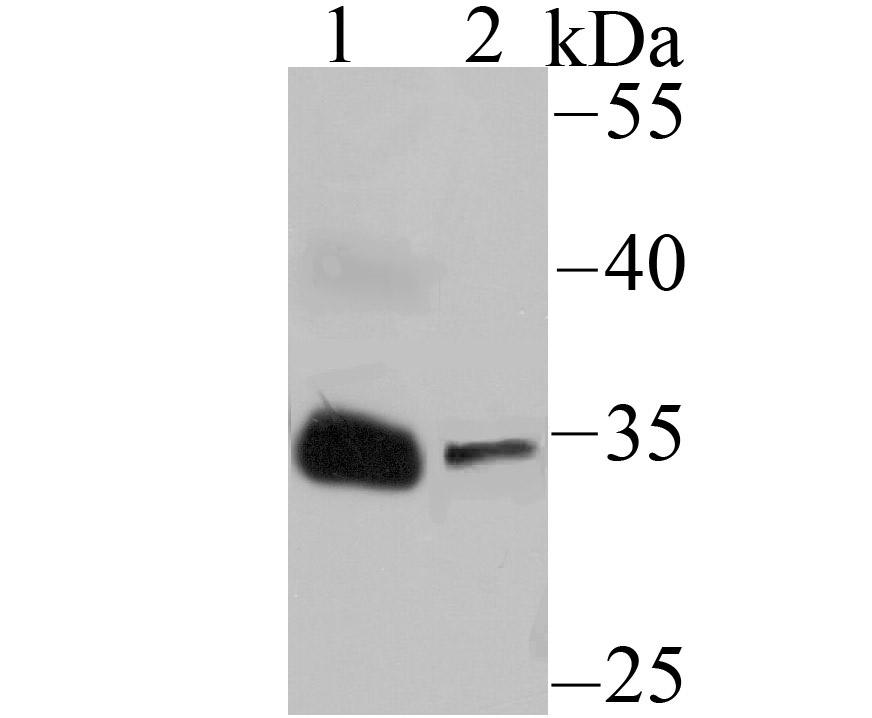 Western blot analysis of IGFBP2 on Human serum (1) and NCCIT (2) lysates using anti-IGFBP2 antibody at 1/500 dilution.