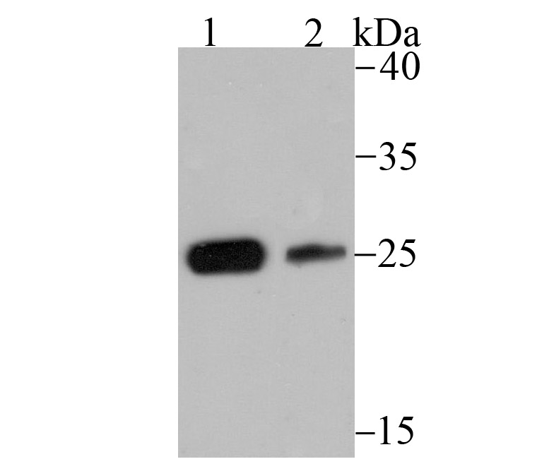 Western blot analysis of CSNK2B on SH-SY5Y (1) and 293 (2) lysate using anti-CSNK2B antibody at 1/500 dilution.