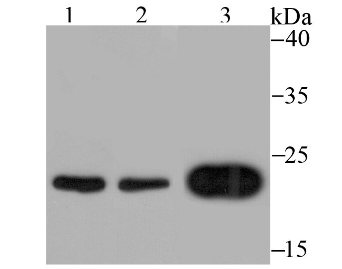Western blot analysis of Mad2L1 on different cell lysates using anti-Mad2L1 antibody at 1/500 dilution.<br />   Positive control:<br />   Lane 1: K562 <br />   Lane 2: 293T<br />   Lane 3: SH-SY5Y