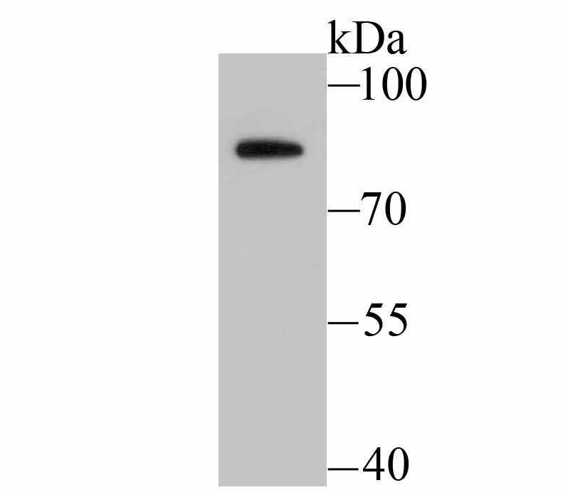 Western blot analysis of BDKRB2 on MCF-7 cell lysate using anti-BDKRB2 antibody at 1/500 dilution.
