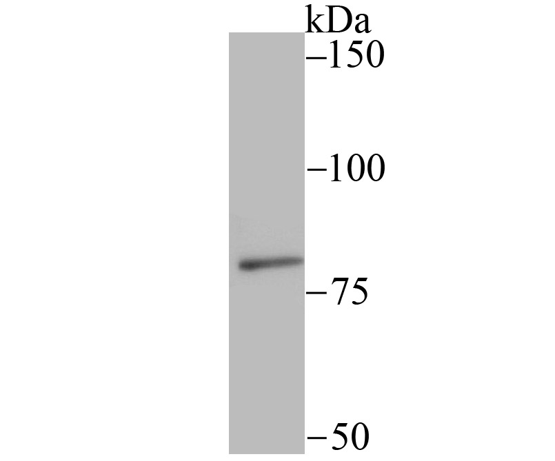 Western blot analysis of SMURF 2 on A431 cell using anti-SMURF 2 antibody at 1/200 dilution.
