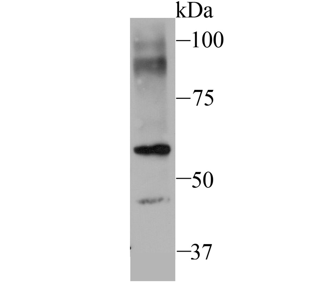 Western blot analysis of SEC23 on NIH-3T3 cell using anti-SEC23 antibody at 1/500 dilution.