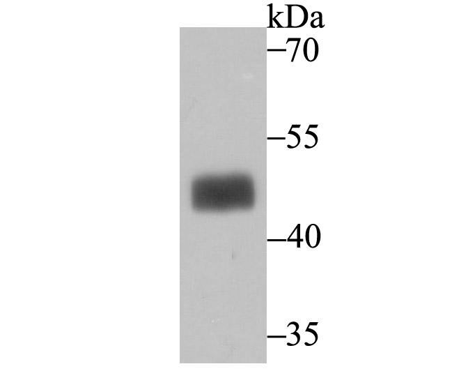 Western blot analysis of MAPKAP Kinase 2 on SK-Br-3 cell lysate using anti-MAPKAP Kinase 2 antibody at 1/500 dilution.