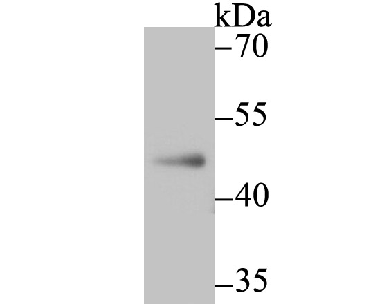 Western blot analysis of NR0B1 on A549 cell lysate using anti-NR0B1 antibody at 1/500 dilution.