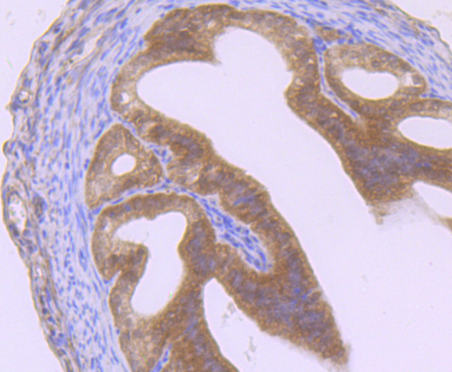 Immunohistochemical analysis of paraffin-embedded mouse fallopian tubes tissue using anti-GIT1 antibody. Counter stained with hematoxylin.