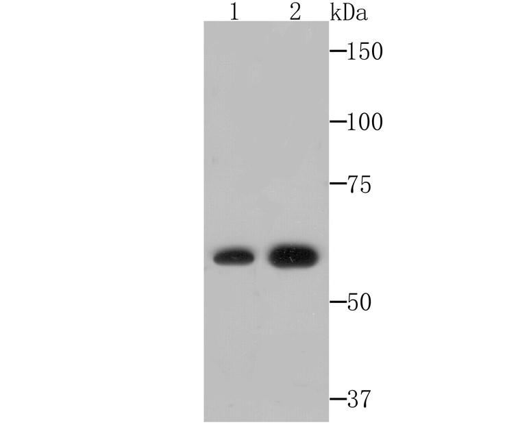 Western blot analysis of NR1D1 on HepG2 and SiHa cell lysates using anti-NR1D1 antibody at 1/500 dilution.