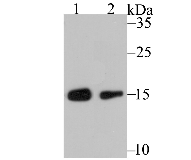 Western blot analysis of RPS19 on Hela cell using anti-RPS19 antibody at 1/500 dilution.<br />  Positive control:<br />  Lane 1: CRC<br />  Lane 2: MCF-7<br />