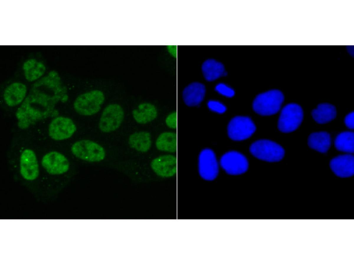 ICC staining Matrin 3 in Hela cells (green). The nuclear counter stain is DAPI (blue). Cells were fixed in paraformaldehyde, permeabilised with 0.25% Triton X100/PBS.