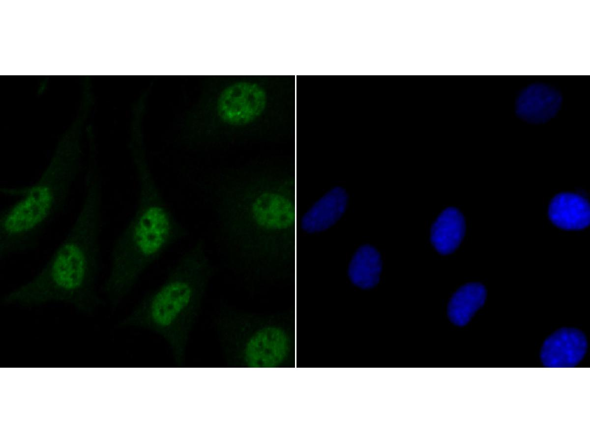 ICC staining Matrin 3 in SH-SY-5Y cells (green). The nuclear counter stain is DAPI (blue). Cells were fixed in paraformaldehyde, permeabilised with 0.25% Triton X100/PBS.