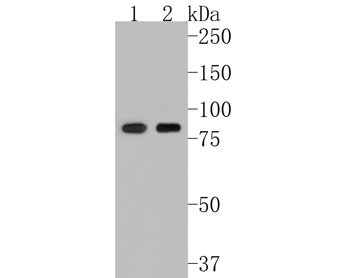 Western blot analysis of Fructose 6 Phosphate Kinase on PC-3M cell lysate using anti-Fructose 6 Phosphate Kinase antibody at 1/500 dilution.