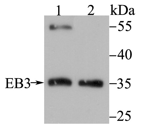 Western blot analysis of EB3 on different lysates using anti-EB3 antibody at 1/500 dilution.<br />  Positive control:<br />  Lane 1: Mouse brain tissue<br />  Lane 2: K562<br />