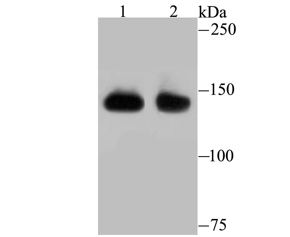 Western blot analysis of SF3B1 on different lysates using anti-SF3B1 antibody at 1/500 dilution.<br />  Positive control:<br />  Lane 1: Mouse thymus <br />  Lane 2: Hela<br />