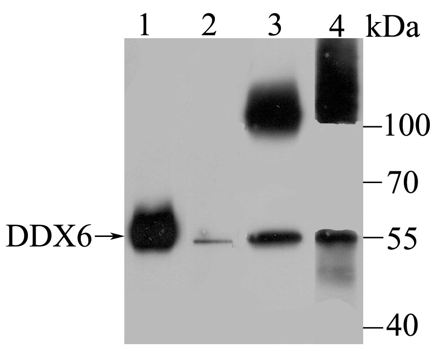 Western blot analysis of DDX6 on different lysates using anti-DDX6 antibody at 1/500 dilution.<br />  Positive control:<br />  Lane 1: Human colon <br />  Lane 2: SH-SY-5Y<br />  Lane 3: SiHa <br />  Lane 4: K562<br />