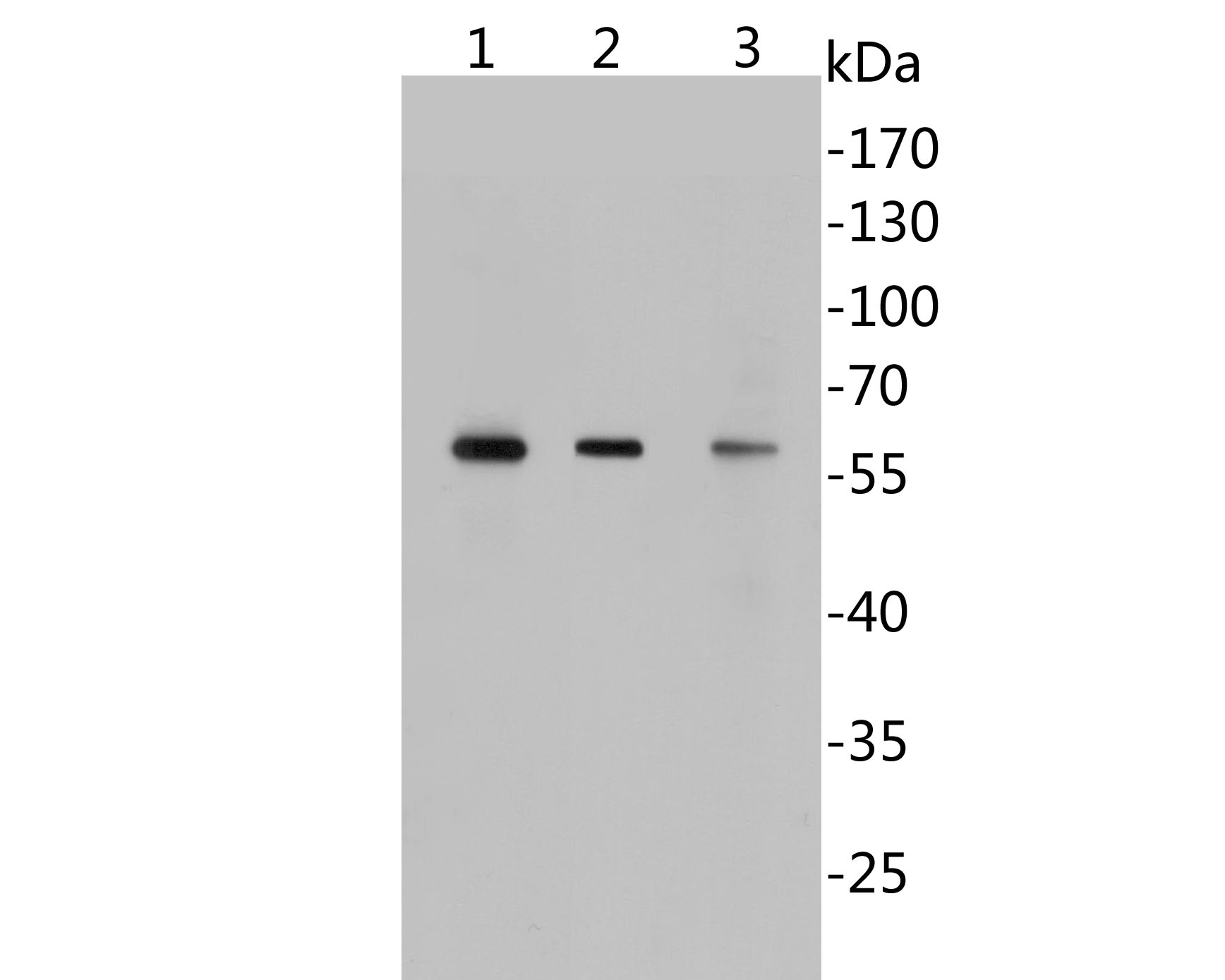 Western blot analysis of GABA A Receptor alpha 5 on different lysates using anti-GABA A Receptor alpha 5 antibody at 1/1,000 dilution.<br />  Positive control: <br />  Lane 1: A549 cell lysate <br />  Lane 2: 293T cell lysate<br />  Lane 3: Rat brain tissue lysate
