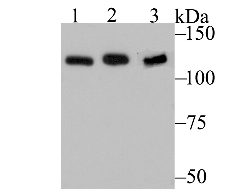 Western blot analysis of HnRNP U on different cell lysates using anti-HnRNP U at 1/500 dilution.<br />  Positive control:<br />  Lane 1: NIH-3T3 <br />  Lane 2: SH-SY-5Y<br />  Lane 3: K562<br />