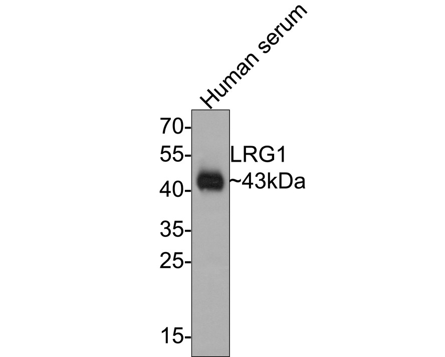 Western blot analysis of LRG1 on human serum using anti-LRG1 antibody at 1/500 dilution.