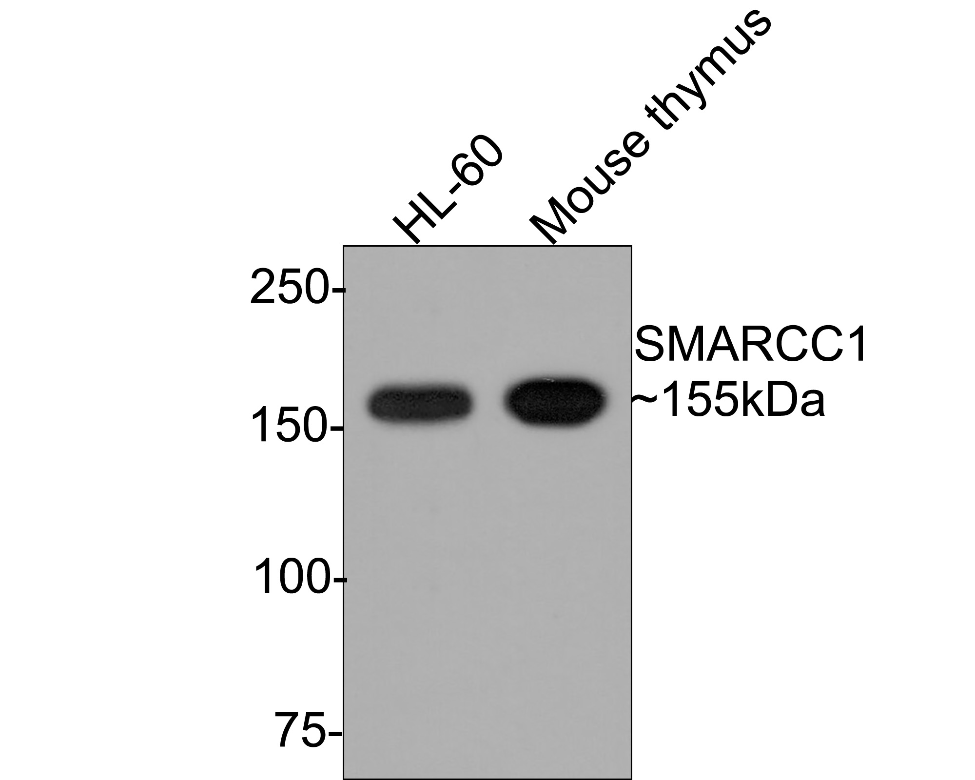 Western blot analysis of SMARCC1 on different cell lysates using anti-SMARCC1 at 1/500 dilution.<br />  Positive control:<br />  Line 1: Mouse thymus tissue <br />     Line 2: HL-60