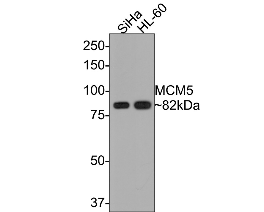 Western blot analysis of MCM5 on different lysates using anti-MCM5 antibody at 1/500 dilution.<br />   Positive control:<br />   Lane 1: Mouse thymus tissue<br />   Lane 2: SiHa