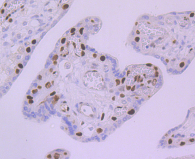 Immunohistochemical analysis of paraffin-embedded human placenta tissue using anti-MCM5 antibody. Counter stained with hematoxylin.