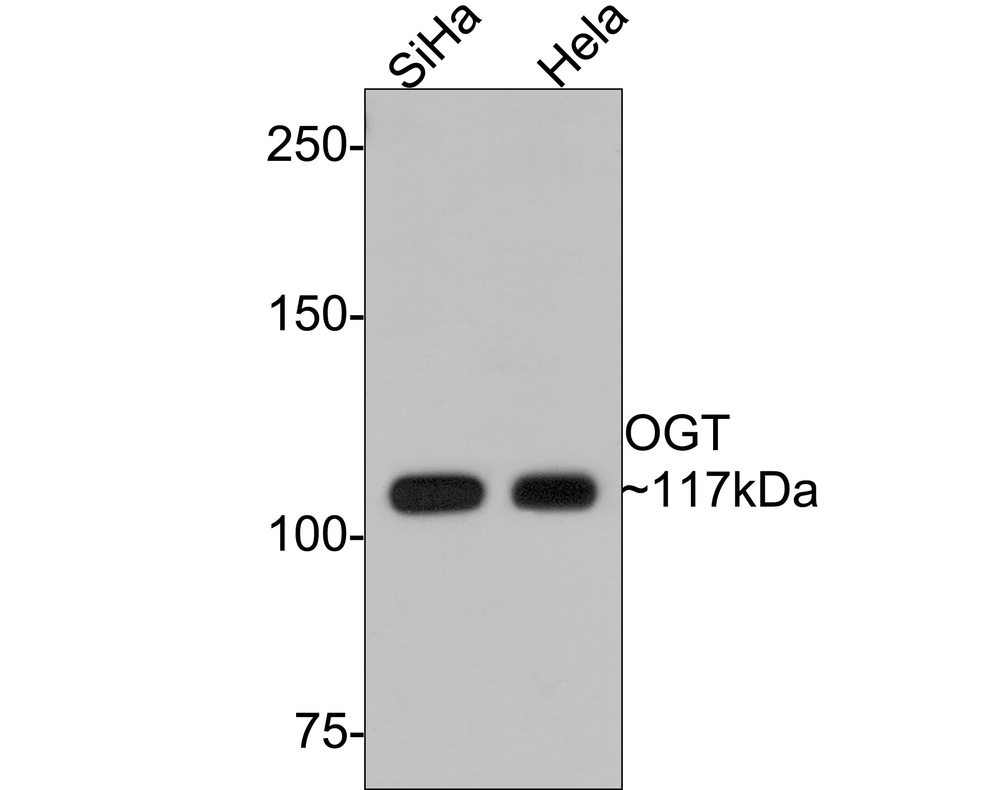 Western blot analysis of OGT on Hela (1) and SiHa (2) cell lysate using anti-OGT antibody at 1/500 dilution.