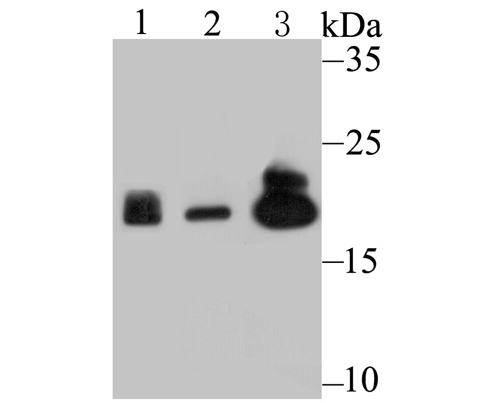 Western blot analysis of Proteasome 20S LMP2 on different lysates using anti-Proteasome 20S LMP2 antibody at 1/500 dilution.<br />   Positive control:<br />   Lane 1: Mouse spleen tissue <br />   Lane 2: U937 <br />   Lane 2: Mouse colon tissue