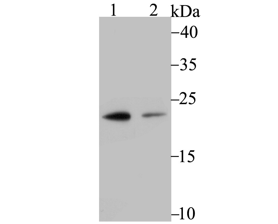 Western blot analysis of Proteasome 20S LMP7 on U937 (1) and A431 (2) cell lysate using anti-Proteasome 20S LMP7 antibody at 1/500 dilution.