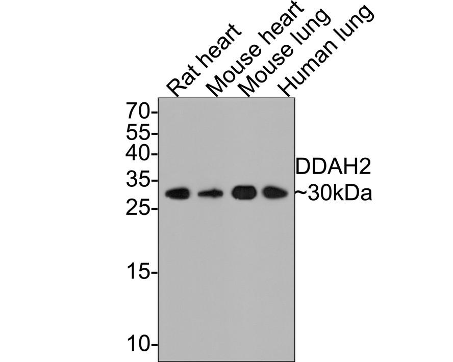 Western blot analysis of DDAH2 on different tissue lysates using anti-DDAH2 antibody at 1/2,000 dilution.<br />  Positive control:<br />  Lane 1: Rat heart<br />      Lane 2: Mouse heart<br />  Lane 3: Mouse lung<br />     Lane 4: Human lung
