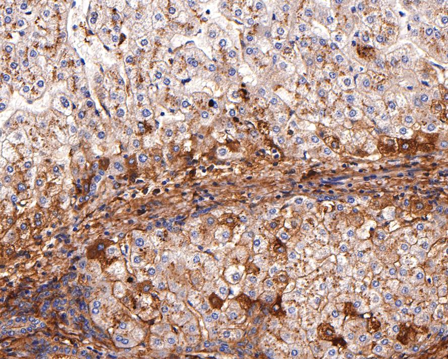 Immunohistochemical analysis of paraffin-embedded human liver tissue using anti-Apolipoprotein A II antibody. Counter stained with hematoxylin.