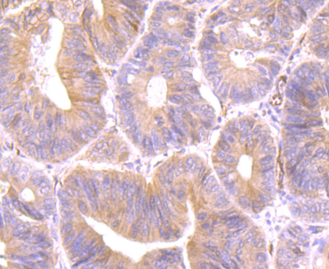 Immunohistochemical analysis of paraffin-embedded human colon cancer tissue using anti-Securin antibody. Counter stained with hematoxylin.