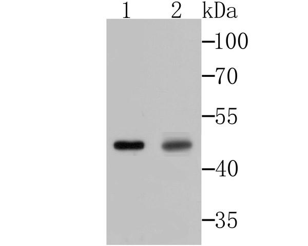 Western blot analysis of Galectin 8 on mouse testis and rat testis tissue lysates using anti-Galectin 8 antibody at 1/500 dilution.