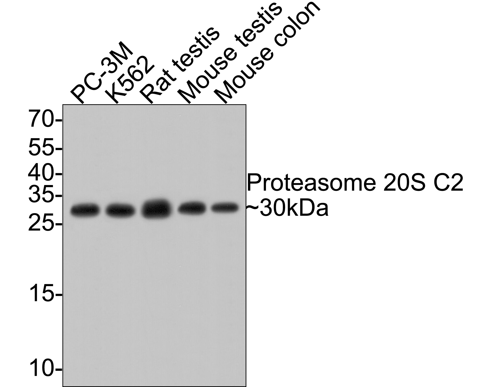 Western blot analysis of Proteasome 20S C2 on different lysates using anti-Proteasome 20S C2 antibody at 1/500 dilution.<br />  Positive control:<br />  Lane 1: PC-3M<br />     Lane 2: K562 <br />   Lane 3: Rat testis<br />  Lane 4: Mouse testis <br />    Lane 5: Mouse colon