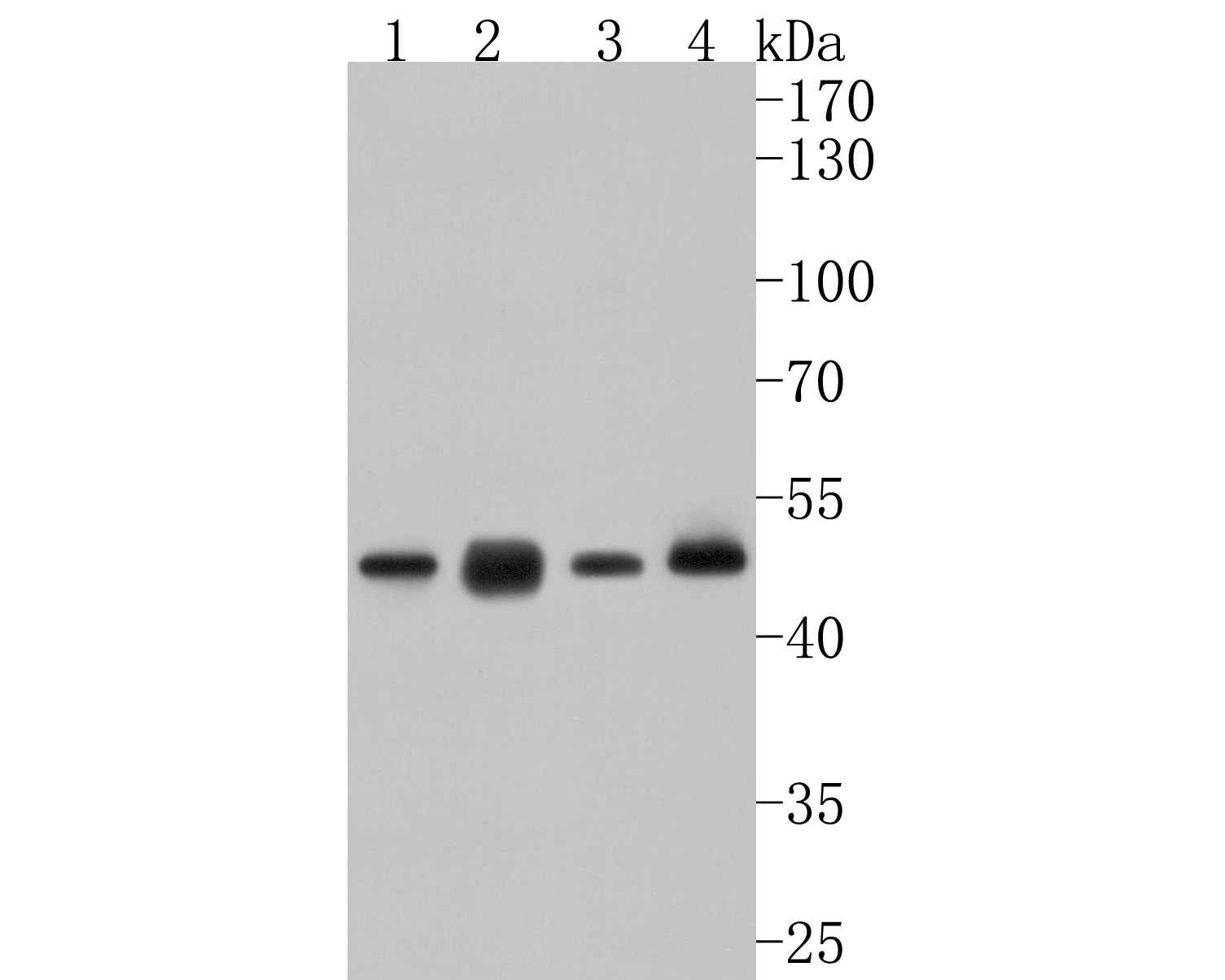 Western blot analysis of Glutathione Synthetase on different lysates using anti-Glutathione Synthetase antibody at 1/500 dilution.<br />   Positive control:<br />   Lane 1: SiHa<br />   Lane 2: Mouse colon<br />   Lane 3: Rat liver