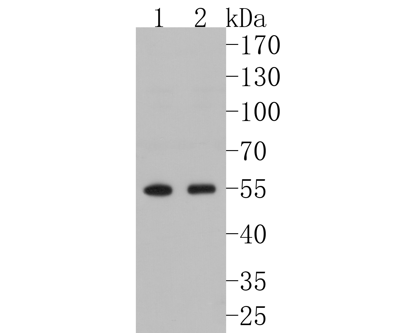 Western blot analysis of FKBP51 on different lysates. Proteins were transferred to a PVDF membrane and blocked with 5% BSA in PBS for 1 hour at room temperature. The primary antibody (ET7107-64, 1/500) was used in 5% BSA at room temperature for 2 hours. Goat Anti-Rabbit IgG - HRP Secondary Antibody (HA1001) at 1:5,000 dilution was used for 1 hour at room temperature.<br /> Positive control: <br /> Lane 1: Daudi cell lysate<br /> Lane 2: Hela cell lysate