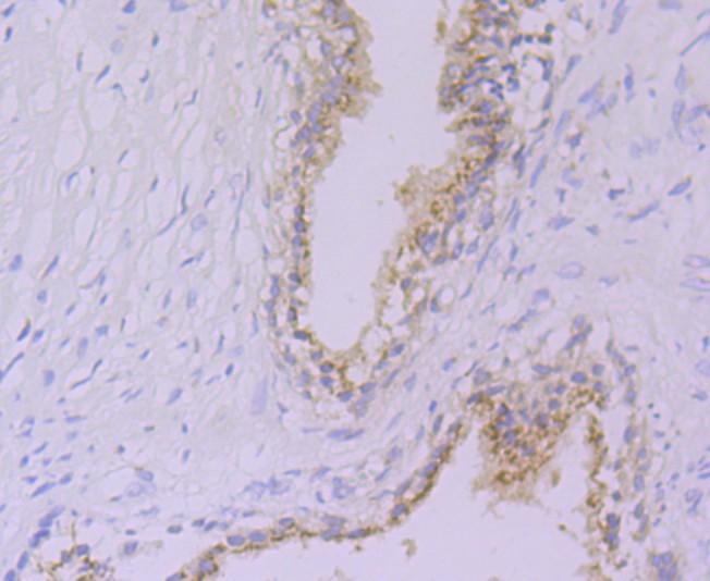 Immunohistochemical analysis of paraffin-embedded human prostate tissue using anti-Glucose 6 phosphate isomerase antibody. Counter stained with hematoxylin.