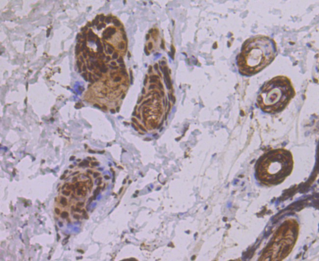 Immunohistochemical analysis of paraffin-embedded mouse skin tissue using anti-eIF4A3 antibody. Counter stained with hematoxylin.