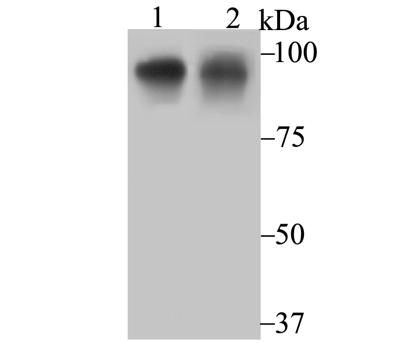 Western blot analysis of Oct-1 on SH-SY-5Y cell (1) and A431 cell (2) lysate using anti-Oct-1 antibody at 1/1,000 dilution.