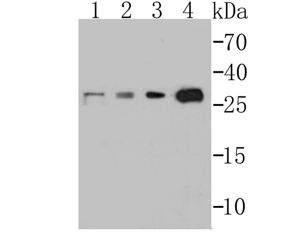 Western blot analysis of p53 DINP1 on different lysates. Proteins were transferred to a PVDF membrane and blocked with 5% BSA in PBS for 1 hour at room temperature. The primary antibody (ET7108-35, 1/500) was used in 5% BSA at room temperature for 2 hours. Goat Anti-Rabbit IgG - HRP Secondary Antibody (HA1001) at 1:40,000 dilution was used for 1 hour at room temperature.<br /> Positive control: <br /> Lane 1: SH-SY5Y cell lysate<br /> Lane 2: HepG2 cell lysate<br /> Lane 3: Mouse stomach tissue lysate<br /> Lane 4: Human stomach tissue lysate