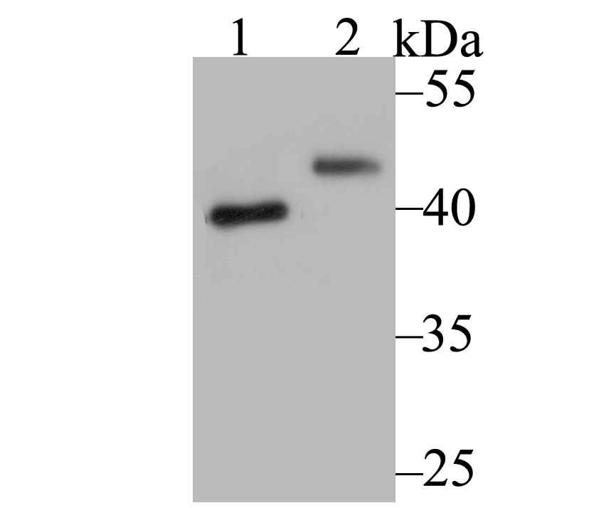 Western blot analysis of SUV39H2 on SiHa cell (1) and A549 cell (2) lysate using anti- SUV39H2 antibody at 1/1,000 dilution.
