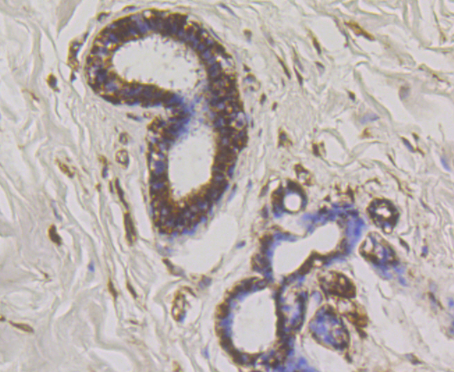 Immunohistochemical analysis of paraffin-embedded human breast cancer tissue using anti-WNK1 antibody. Counter stained with hematoxylin.